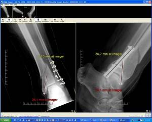 CoActiv Orthopedics