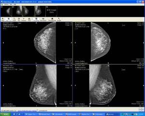 CoActiv Breast Imaging